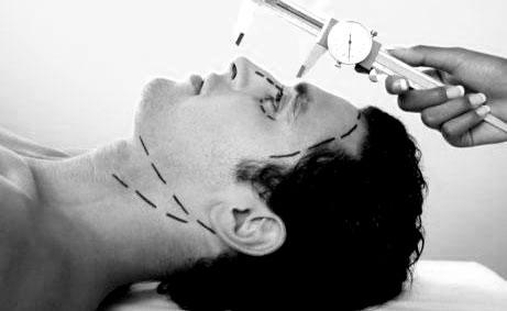burun-ameliyati001